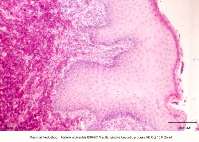 Atelerix albiventris B99-8C Maxillar gingiva Leucotic process HE Obj 10 P Zwart