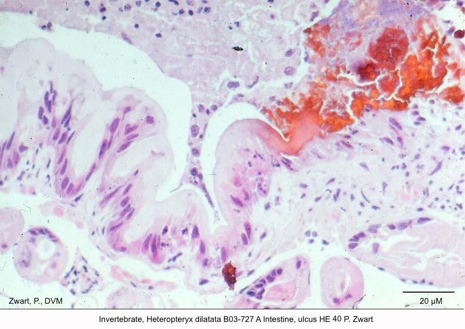 Heteropteryx dilatata B03-727 A Intestine ulcus HE 40 PZwart