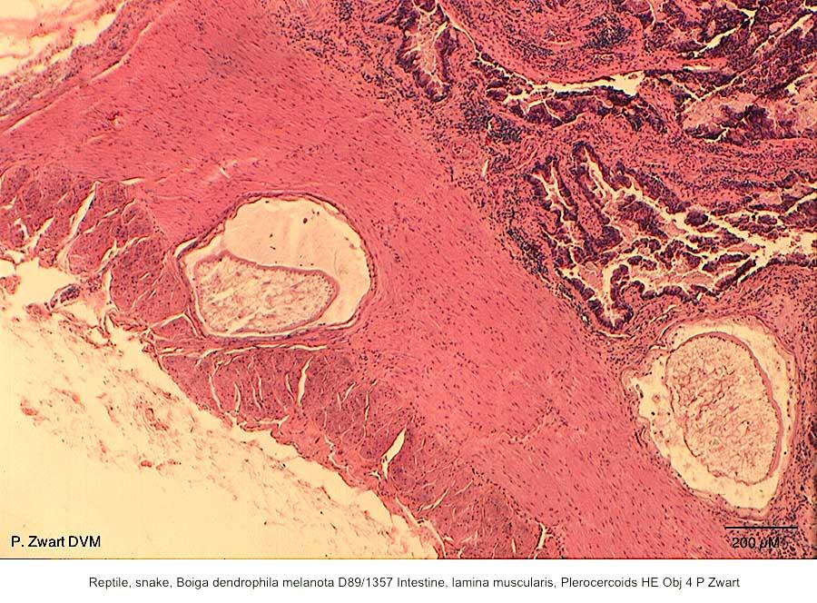 Boiga dendrophila melanota D89-1357 Intestine, lamina muscularis, Plerocercoids HE Obj 4 P Zwart kopie
