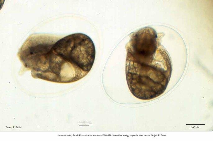 Planorbarius corneus D90-476 Juveniles in egg capsule Wet mount Obj 4 P. Zwart