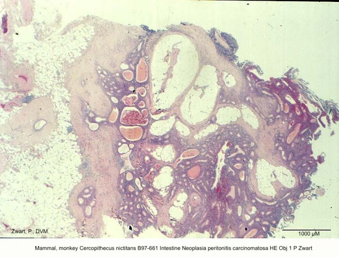Cercopithecus nictitans B97-661 Intestine Neoplasia peritonitis carcinomatosa HE Obj 1 P Zwart
