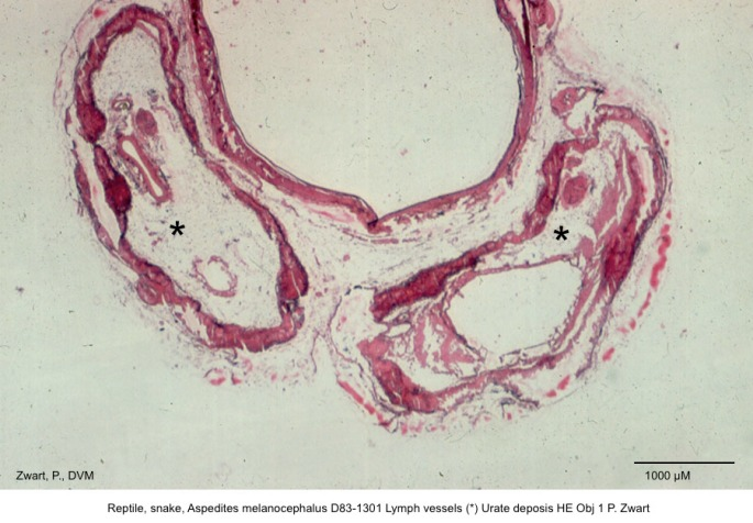 Aspedites melanocephalus D83-1301 Lymph vessels Urate deposis HE Obj 1 P. Zwart kopie