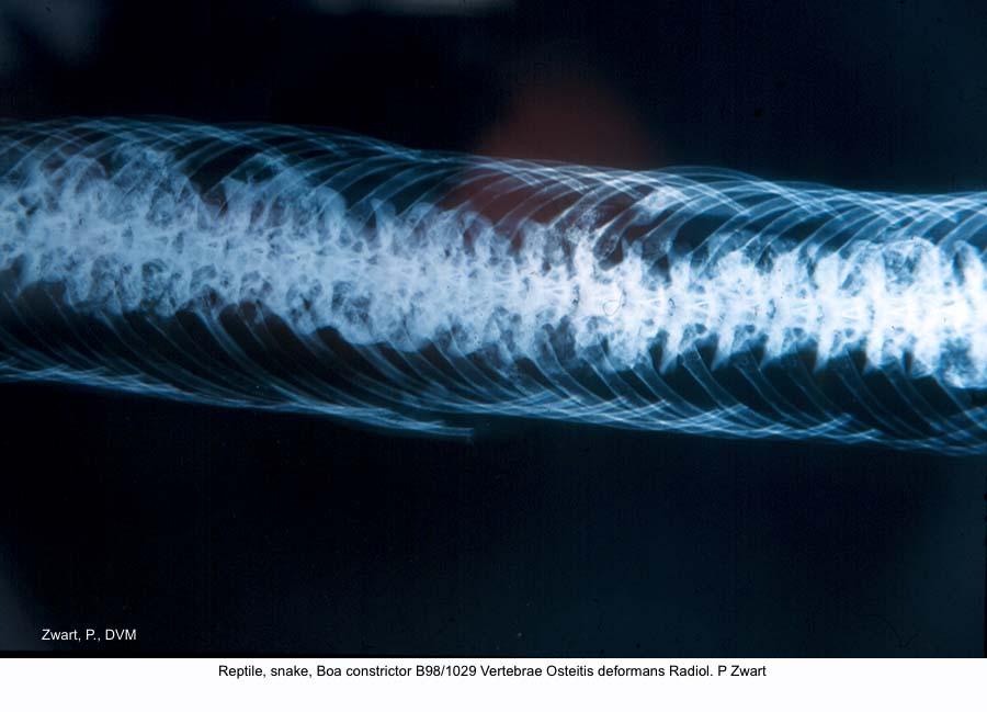Boa constrictor B98-1029 Vertebra Osteitis deformans Radiol. P Zwart kopie
