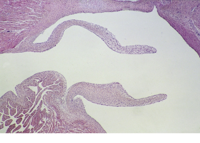 Broghammerus (Python) reticulatus. D90-457  Heart valve Main Vasc. trunk.jpg