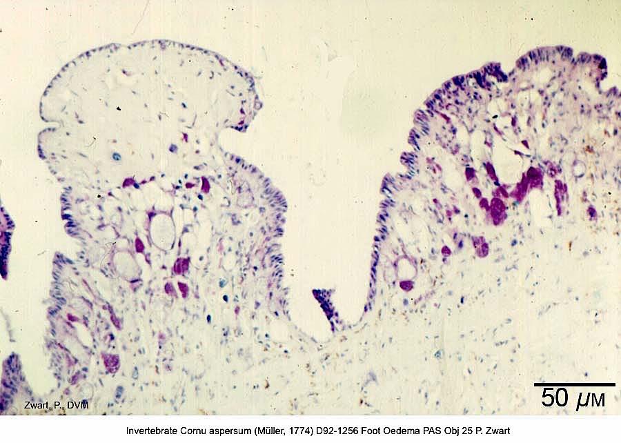 Cornu aspersum (Müller, 1774) D92-1256 Foot Oedema PAS Obj 25 P. Zwart kopie