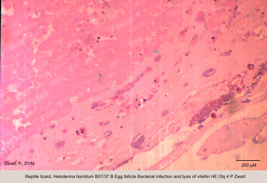 Heloderma horridum B07-37 B Egg follicle Bacterial infection and lysis of vitellin HE Obj 4 P Zwart kopie