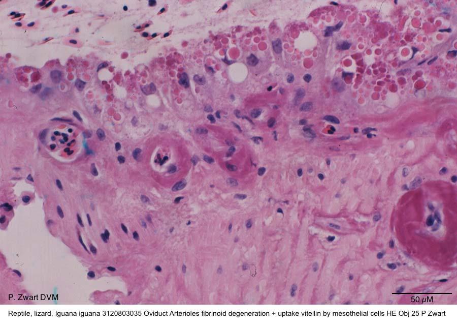 Iguana iguana 3120803035 Oviduct Arterioles fibrinoid degeneration + uptake vitellin by mesothelial cells HE Obj 25 P Zwart