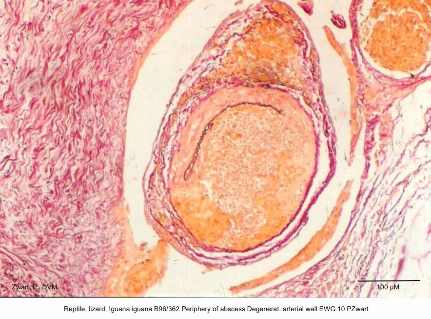 Iguana iguana B96-362 Periphery of abscess Degenerat. arterial wall EWG 10 P. Zwart kopie