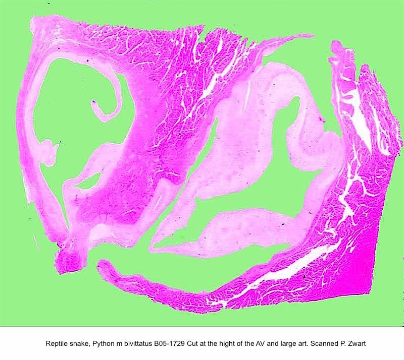 Python m. bivittatus B05-1729 Heart Cut at the hight of the AV and large art. HE Slide Scanned P Zwart kopie