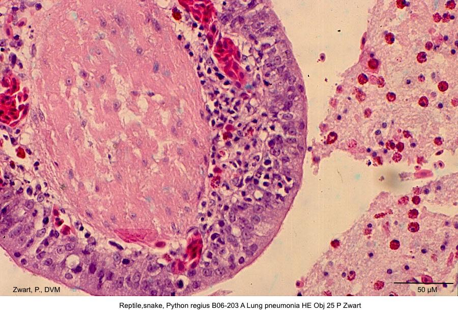Python regius B06-203 A Lung pneumonia HE Obj 25 P Zwart kopie
