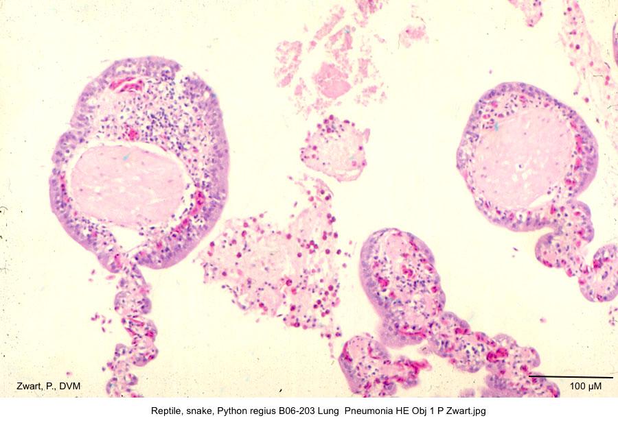 Python regius B06-203 Lung Pneumonia HE Obj 10 P Zwart kopie