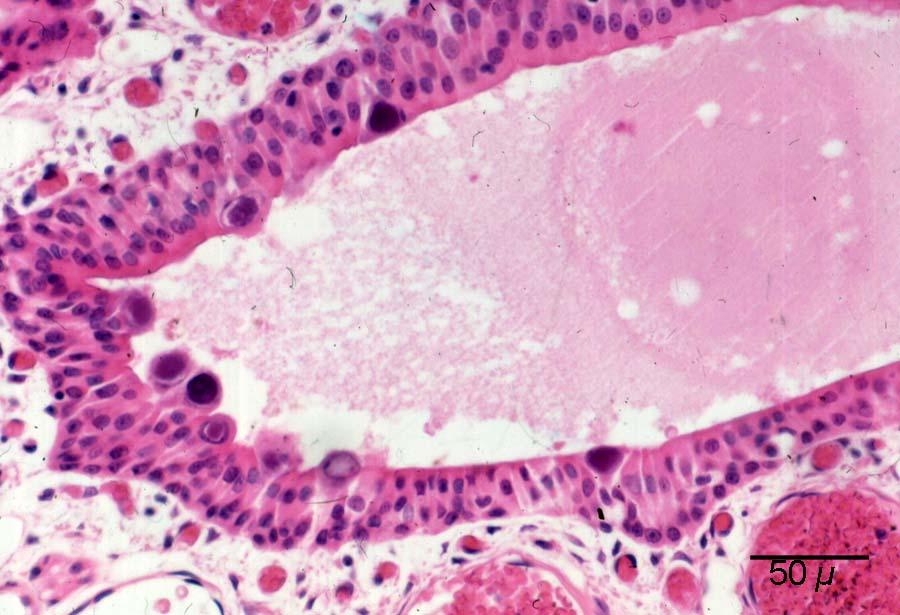 Rattus rattus (Wistar) '92 No 2 b Nose Adenovirus inclusions HE Obj 25 P. Zwart kopie