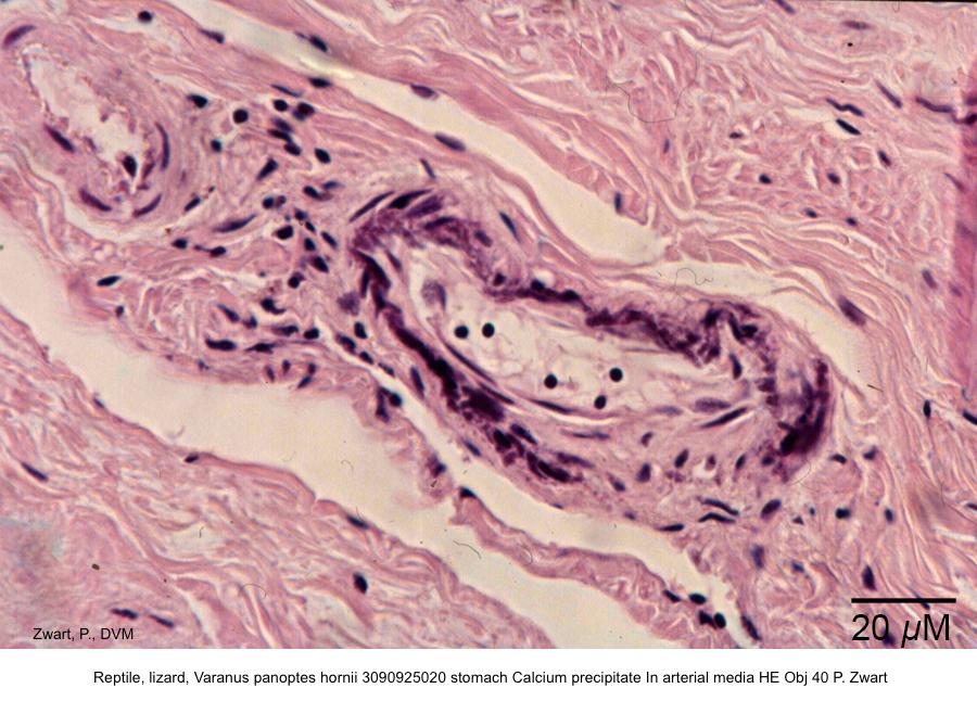 Varanus panoptes hornii 3090925020 stomach Calcium precipitate Perivascular HE Obj 40 P. Zwart kopie 2