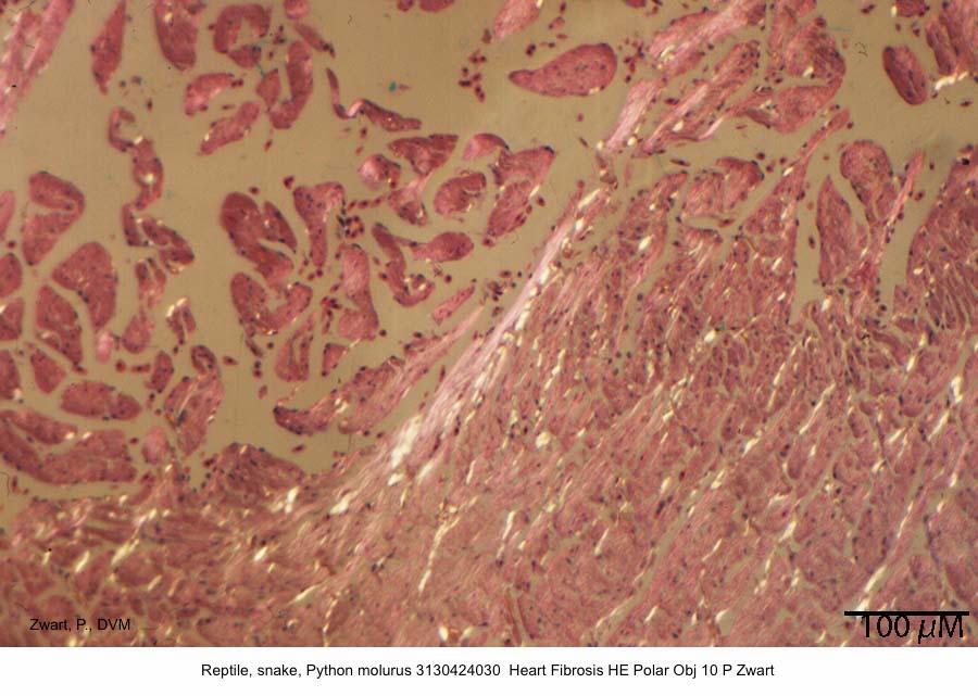 Python molurus 3130424030 Heart Fibrosis HE Polar Obj 10 P Zwart kopie