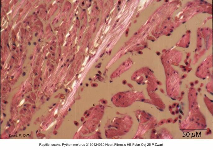 Python molurus 3130424030 Heart Fibrosis HE Polar Obj 25 P Zwart kopie