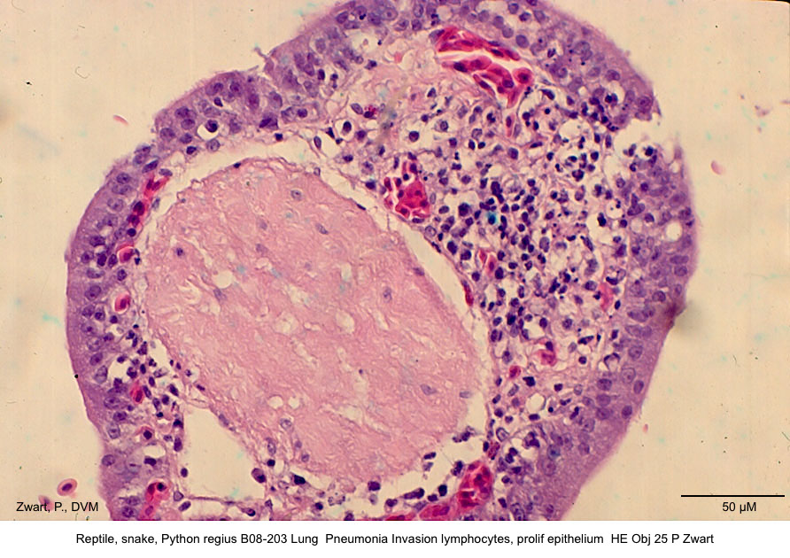 Python regius B06 -203 Lung Pneumonia HE Obj 25 P Zwart kopie