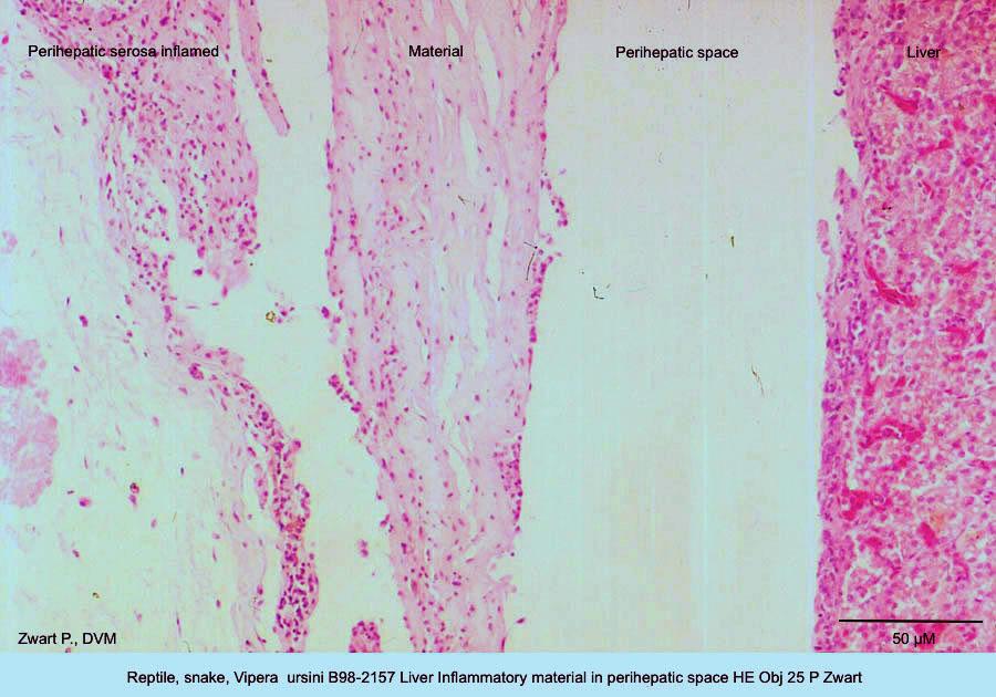 Vipera ursini B98-2157 Liver Inflammatory material in perihepatic space HE Obj 25 P Zwart kopie