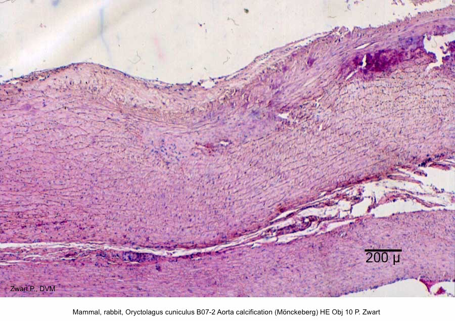 Oryctolagus cuniculus B07-2 Aorta calcification (Mönckeberg) + atheromatosis HE Obj 4 P. Zwart