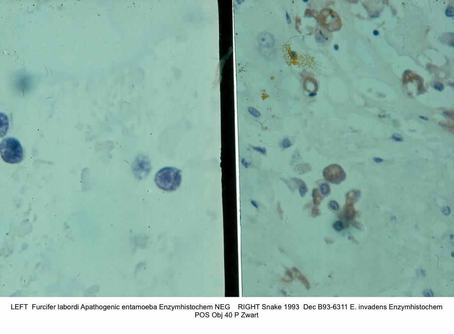 Snake 1993 Dec B93-6311 E. invadens Enzymhistochem pos. next to Furcifer labord i Apathogenic entamoeba Obj 40 P Zwart kopie