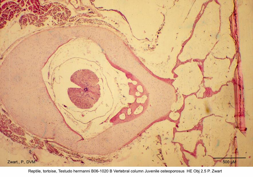 Testudo hermanni B06-1020 B Vertebral column Juvenile osteoporosus HE Obj 2.5 P. Zwart kopie