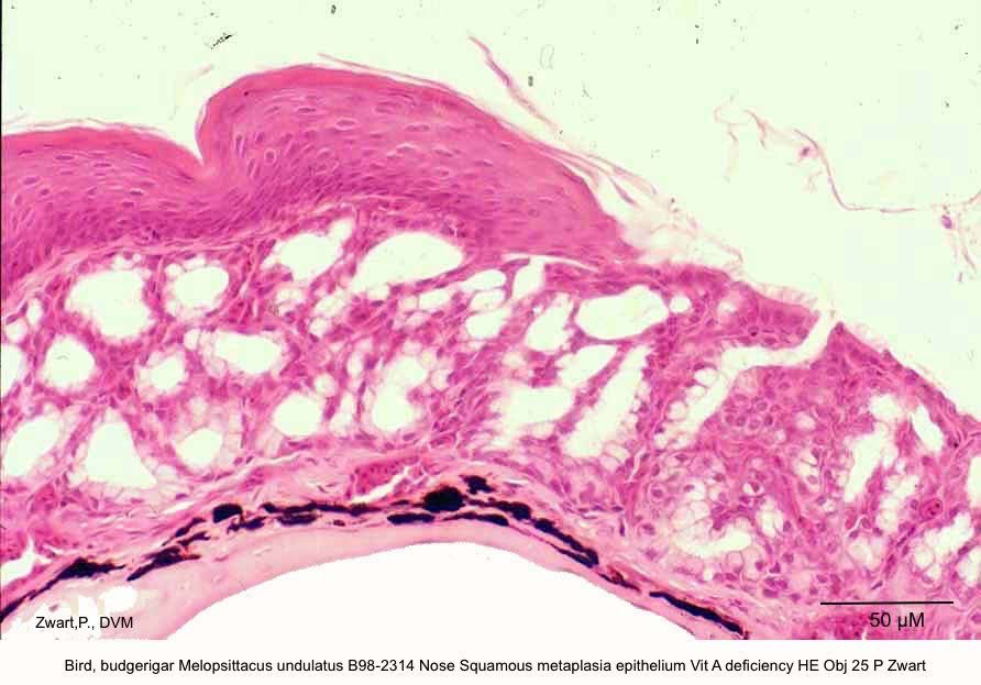 Melopsittacus undulatus B98-2314 Nose Squamous metaplasia ep;ithelium Vit A deficiency HE Obj 25 P Zwart kopie