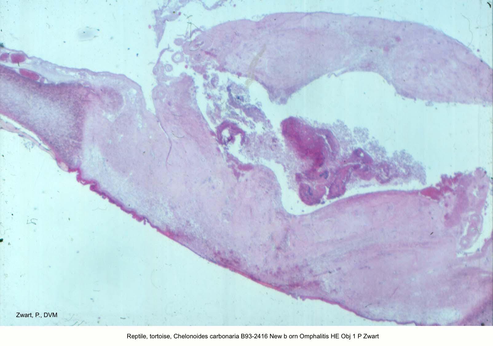 Chelonoides carbonaria B93-2416 Omphalitis HE Obj 1 P Zwart kopie