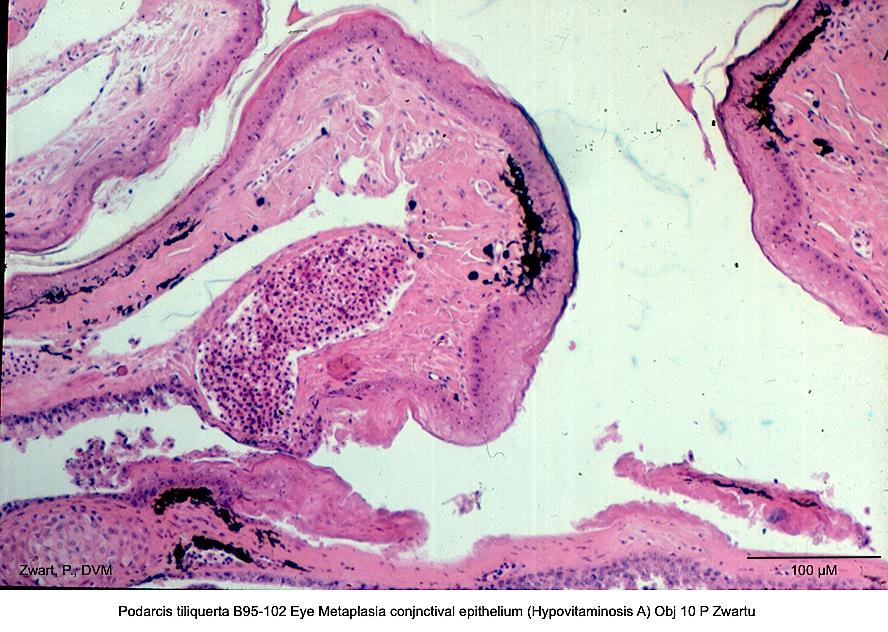 Podarcis tiliquerta B95-102 Eye Metaplasia conjunctival epithelium (Hypovitaminosis A) Obj 10 P Zwart kopie