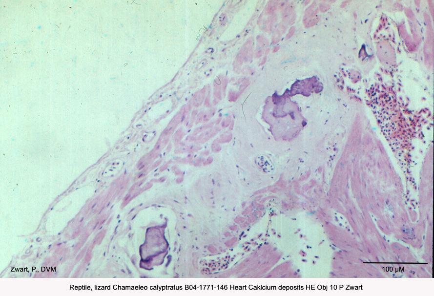 Chamaeleo calyptratus B04-1771-146 Heart Calcium deposits HE Obj 10 P Zwart kopie