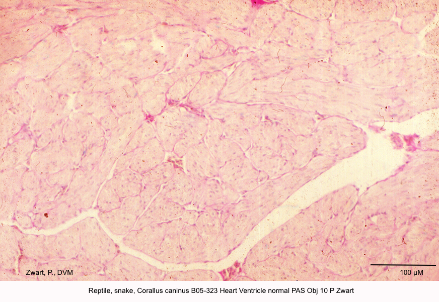 Corallus caninus B05-323 Heart Ventricle normal PAS Obj 10 P Zwart kopie