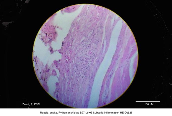 Python anchietae B97- 2403 Subcutis Inflammation Obj 25 kopie