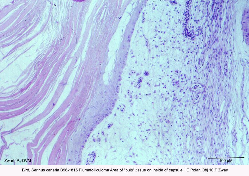Serinus canaria B96-1815 Plumafolliculoma Area of pulp tissue on inside of capsule HE Polar. Obj 10 P Zwart kopie