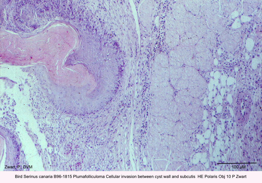 Serinus canaria B96-1815 Plumafolliculoma Cellular invasion between cyst wall and subcutis  HE Obj 10 P Zwart kopie.jpg