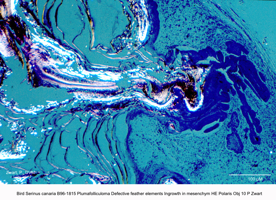 Serinus canaria B96-1815 Plumafolliculoma Defective feather elements Ingrowth in mesenchym HE Polaris Obj 10 P Zwart kopie